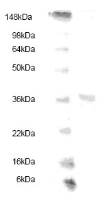 SDS-PAGE - Haptoglobulin beta protein (His tag) (ab83167)
