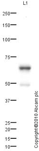 Western blot - Cytokeratin 5 antibody (ab83168)