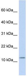 Western blot - Cholecystokinin 39 antibody (ab83180)