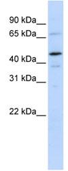 Western blot - TFIIE alpha antibody (ab83188)