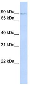 Western blot - ZNF263 antibody (ab83189)