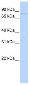 Western blot - ZBTB39 antibody (ab83190)