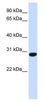 Western blot - FAM164B antibody (ab83191)
