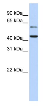Western blot - CMAS antibody (ab83195)