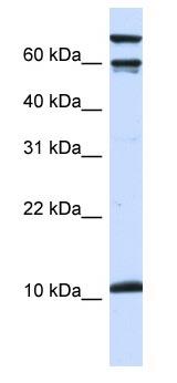 Western blot - Galanin antibody (ab83199)