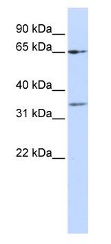 Western blot - ZNF157 antibody (ab83202)