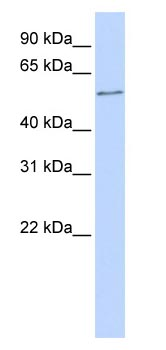 Western blot - ONECUT2 antibody (ab83206)