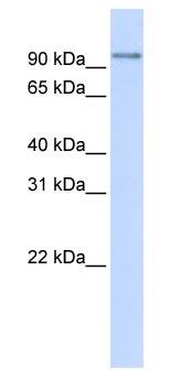 Western blot - PDXDC1 antibody (ab83209)