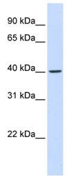 Western blot - FBXO28 antibody (ab83210)