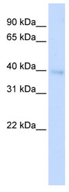 Western blot - HOXA11 antibody (ab83211)