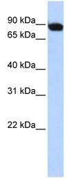 Western blot - ATF6 beta antibody (ab83213)