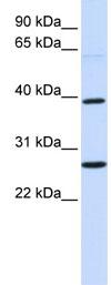 Western blot - Wnt16 antibody (ab83216)
