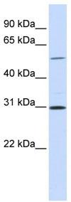 Western blot - NEK3 antibody (ab83221)