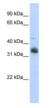 Western blot - MSI2 antibody (ab83236)