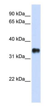 Western blot - KCTD7 antibody (ab83237)