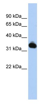 Western blot - Mutarotase antibody (ab83238)