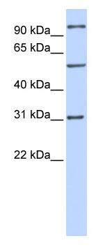 Western blot - RAI14 antibody (ab83239)