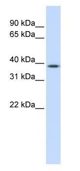 Western blot - ELK3 antibody (ab83240)