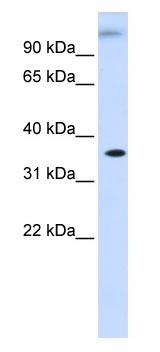 Western blot - DHDH antibody (ab83241)