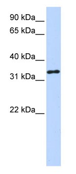 Western blot - HAAO antibody (ab83242)