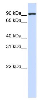 Western blot - CTAGE5 antibody (ab83248)