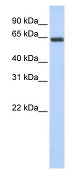 Western blot - UPF3B/RENT3B antibody (ab83249)