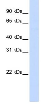 Western blot - LRRC24 antibody (ab83257)
