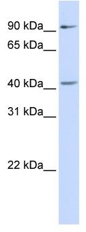 Western blot - SOX17 antibody (ab83258)