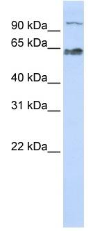 Western blot - Scc4 antibody (ab83261)