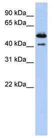 Western blot - DNASE2B antibody (ab83264)