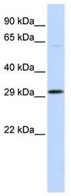 Western blot - OVOL2 antibody (ab83265)