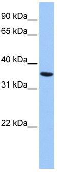 Western blot - Annexin A8 like2 antibody (ab83269)