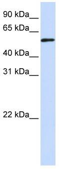 Western blot - TADA3L antibody (ab83270)