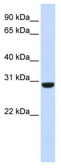 Western blot - Calcipressin 1 antibody (ab83271)