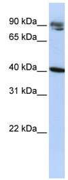 Western blot - KLHDC8A antibody (ab83277)