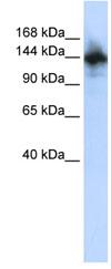 Western blot - RBM6 antibody (ab83280)