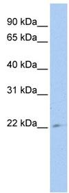 Western blot - TUSC1 antibody (ab83281)