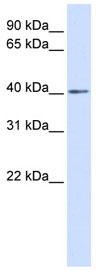 Western blot - BAPX1 antibody (ab83288)
