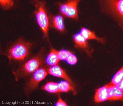 Immunocytochemistry/ Immunofluorescence - BAPX1 antibody (ab83288)