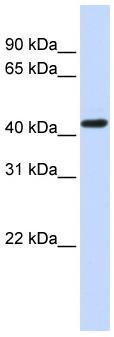 Western blot - Kappa Opioid Receptor antibody (ab83293)