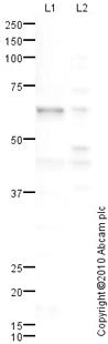 Western blot - Calcitonin receptor antibody (ab83297)