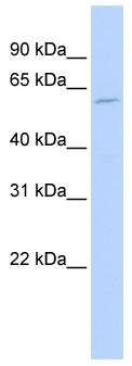 Western blot - FADS1 antibody (ab83298)