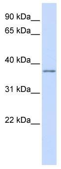 Western blot - Kv beta 2 antibody (ab83301)