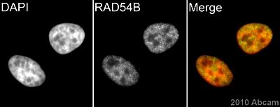 Immunocytochemistry/ Immunofluorescence - RAD54B antibody (ab83311)