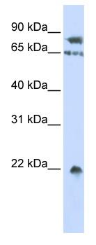 Western blot - SENP1 antibody (ab83321)