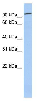 Western blot - ZNF777 antibody (ab83323)