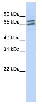 Western blot - PAPOLG antibody (ab83325)