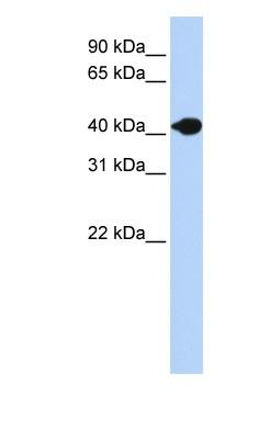 Western blot - DNASE2B antibody (ab83327)