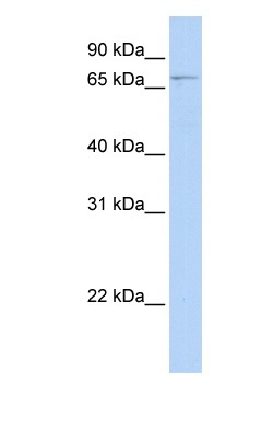 Western blot - GLMN antibody (ab83328)