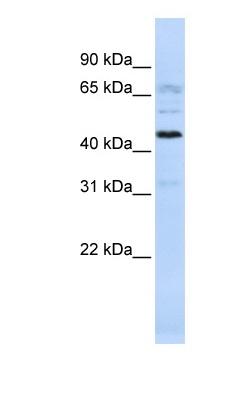 Western blot - C22orf9 antibody (ab83331)
